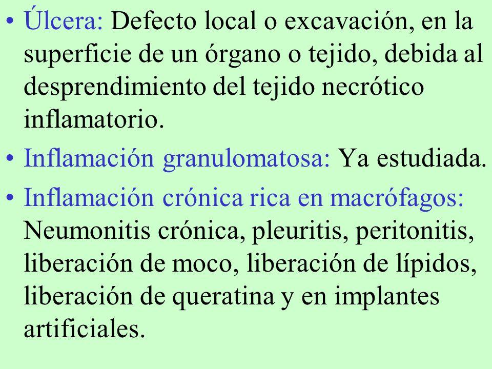 Úlcera: Defecto local o excavación, en la superficie de un órgano o tejido, debida al desprendimiento del tejido necrótico inflamatorio. Inflamación g
