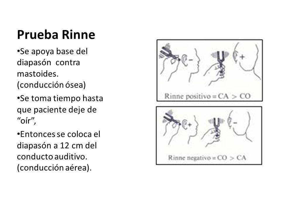Prueba Rinne Se apoya base del diapasón contra mastoides. (conducción ósea) Se toma tiempo hasta que paciente deje de oír, Entonces se coloca el diapa
