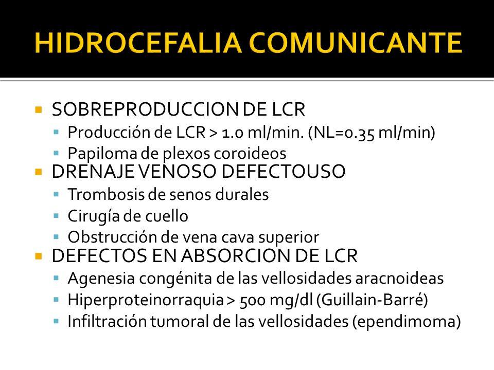 SOBREPRODUCCION DE LCR Producción de LCR > 1.0 ml/min. (NL=0.35 ml/min) Papiloma de plexos coroideos DRENAJE VENOSO DEFECTOUSO Trombosis de senos dura