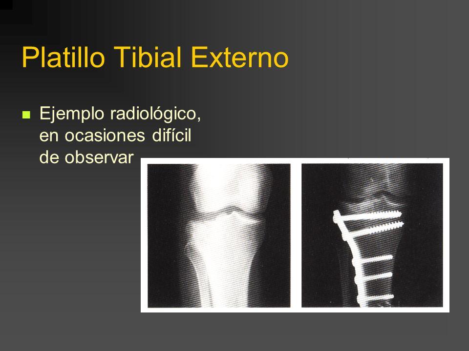 Platillo Tibial Externo Ejemplo radiológico, en ocasiones difícil de observar