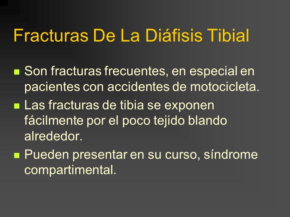 Fracturas De La Diáfisis Tibial Son fracturas frecuentes, en especial en pacientes con accidentes de motocicleta. Las fracturas de tibia se exponen fá