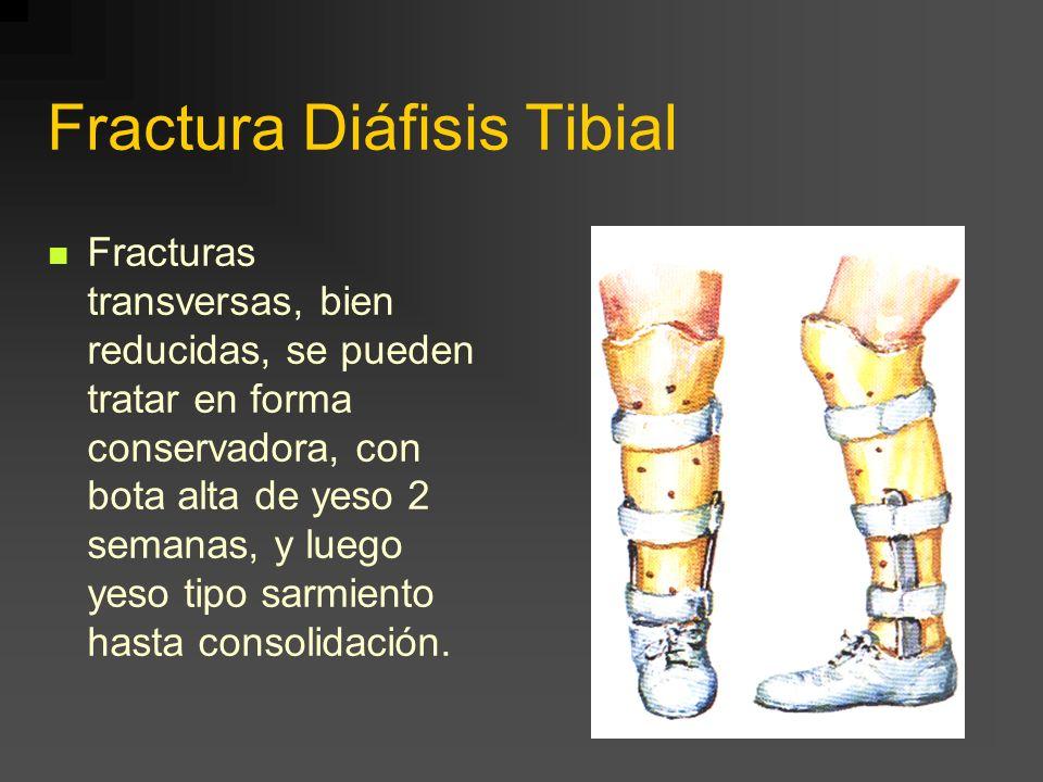 Fractura Diáfisis Tibial Fracturas transversas, bien reducidas, se pueden tratar en forma conservadora, con bota alta de yeso 2 semanas, y luego yeso