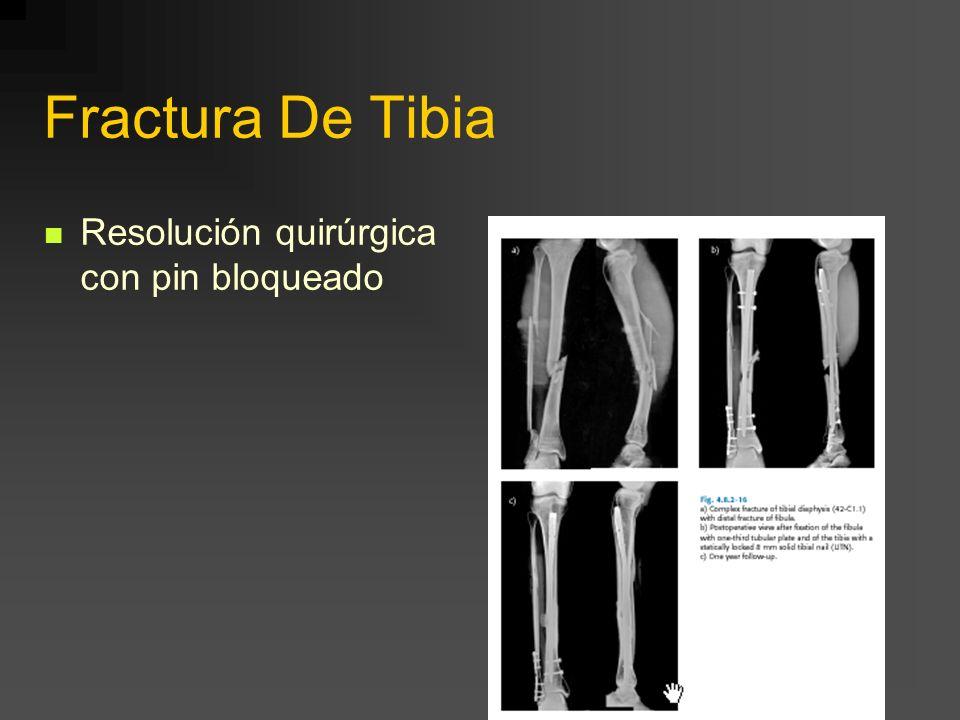 Fractura De Tibia Resolución quirúrgica con pin bloqueado