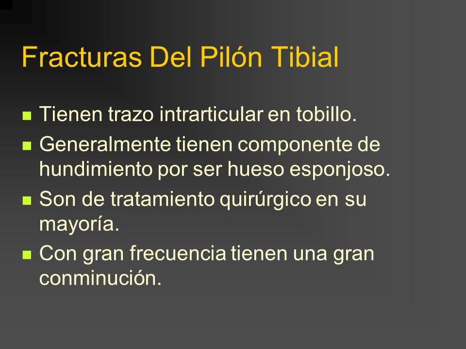 Fracturas Del Pilón Tibial Tienen trazo intrarticular en tobillo. Generalmente tienen componente de hundimiento por ser hueso esponjoso. Son de tratam