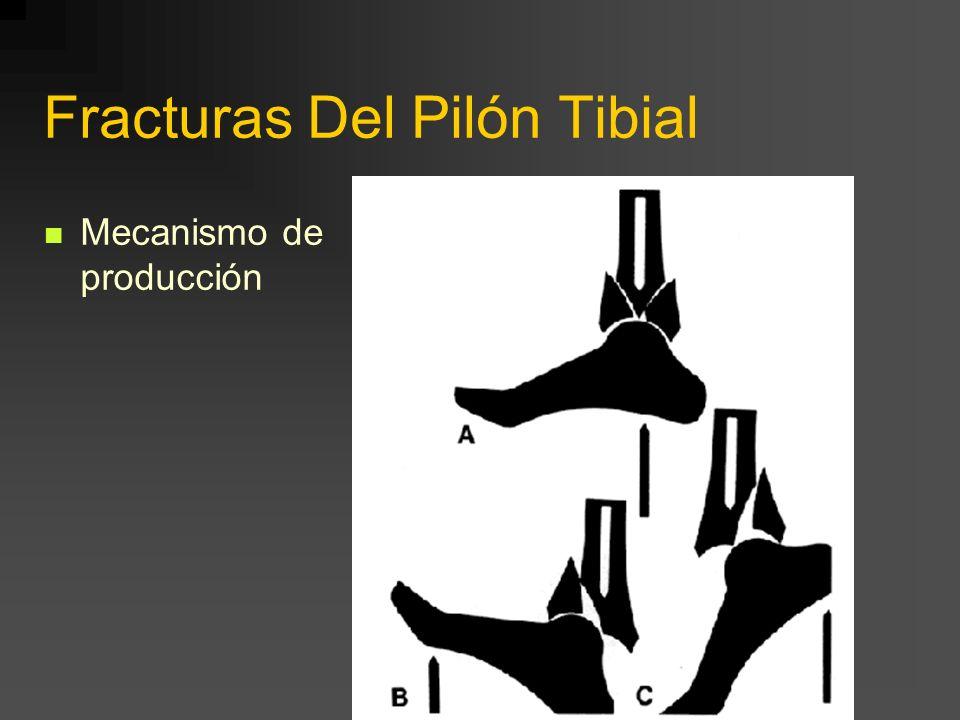 Fracturas Del Pilón Tibial Mecanismo de producción