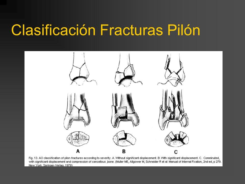 Clasificación Fracturas Pilón