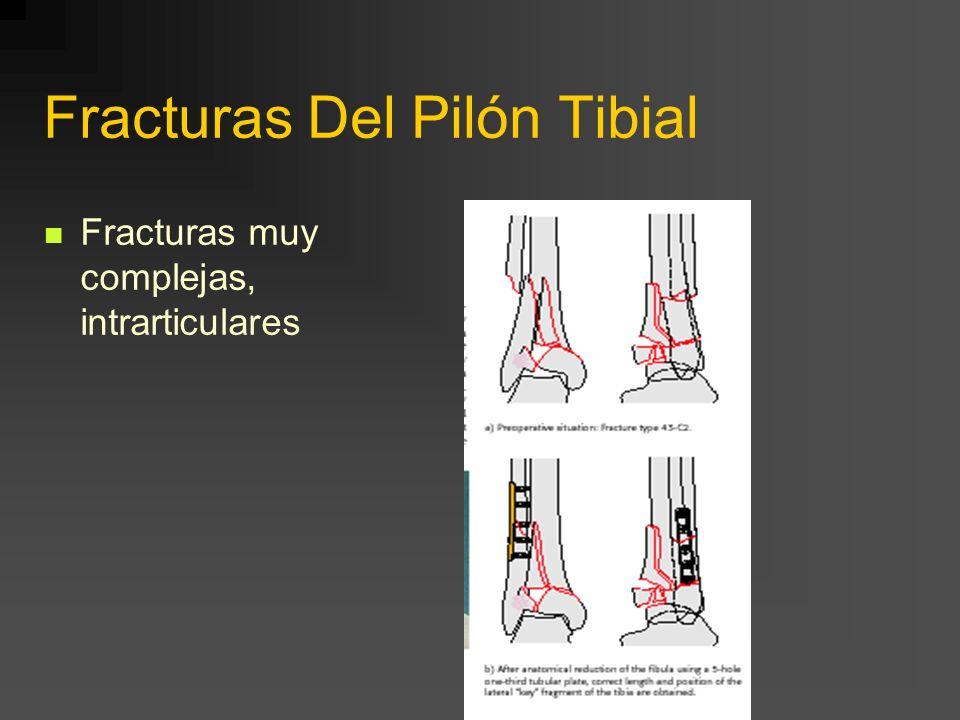 Fracturas Del Pilón Tibial Fracturas muy complejas, intrarticulares
