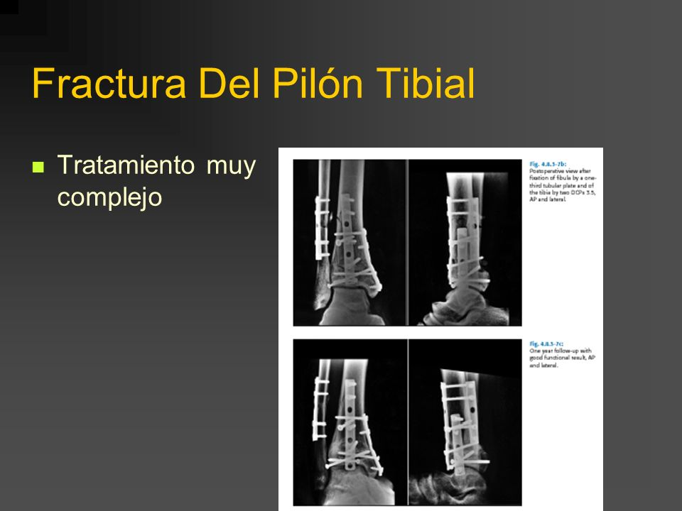 Fractura Del Pilón Tibial Tratamiento muy complejo