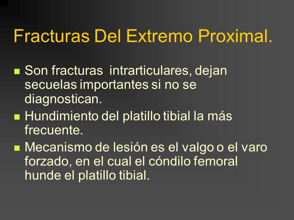 Fracturas Del Extremo Proximal. Son fracturas intrarticulares, dejan secuelas importantes si no se diagnostican. Hundimiento del platillo tibial la má