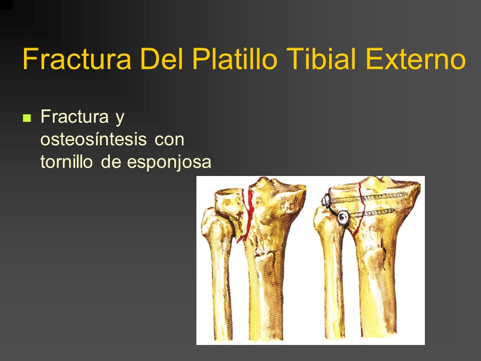 Hundimiento Platillo Tibial Externo Tratamiento con placa e injerto, previo levantamiento del platillo