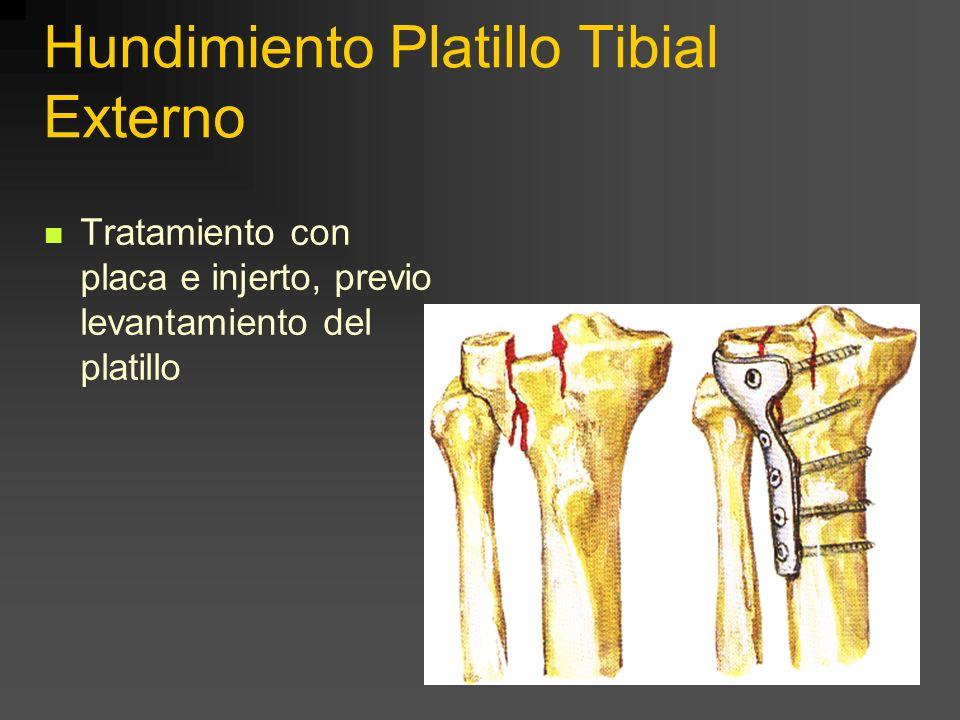 Hundimiento Platillo Tibial Levantamiento e injerto óseo