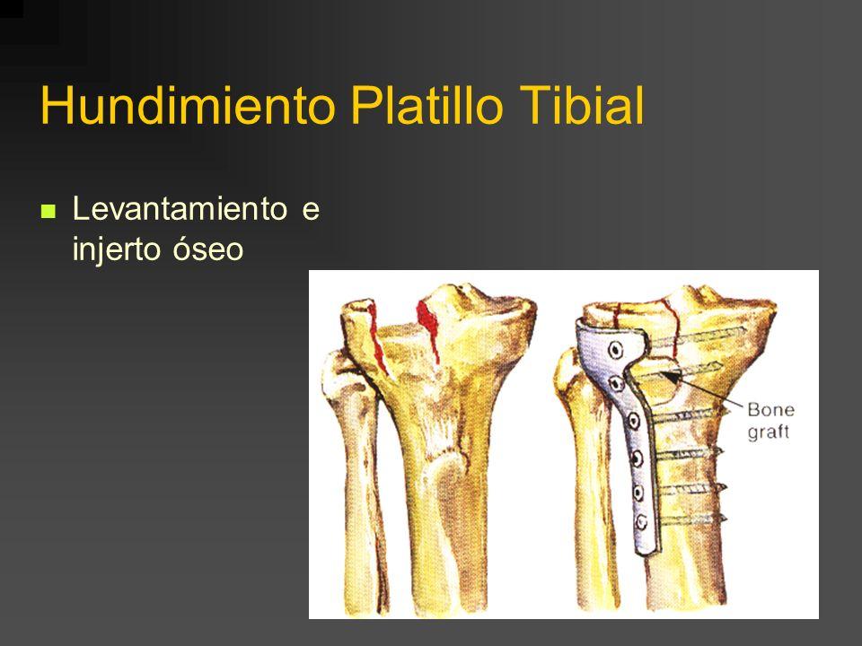 Fractura Platillo Tibial Interno Ostesíntesis con placa
