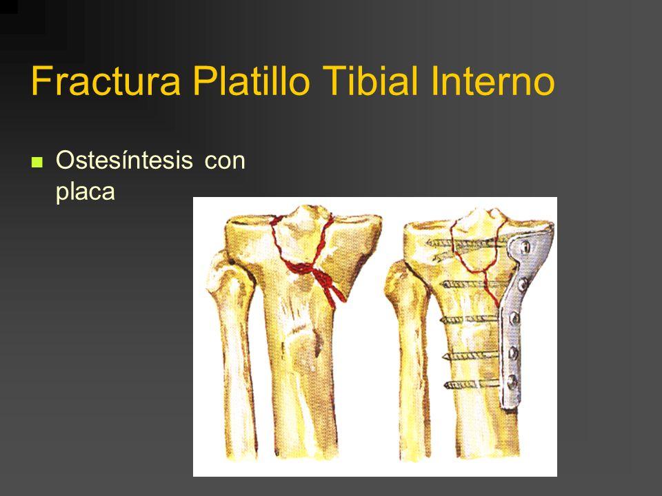 Fractura Ambos Platillos Osteosíntesis con dos placas