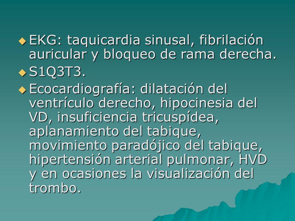 EKG: taquicardia sinusal, fibrilación auricular y bloqueo de rama derecha. EKG: taquicardia sinusal, fibrilación auricular y bloqueo de rama derecha.