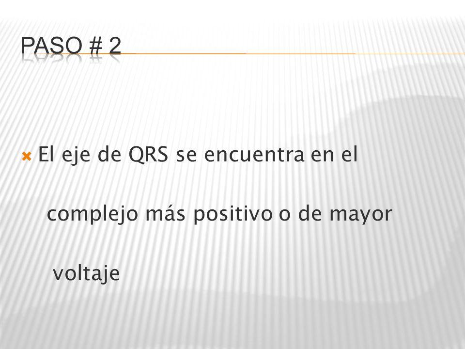 El eje de QRS se encuentra en el complejo más positivo o de mayor voltaje