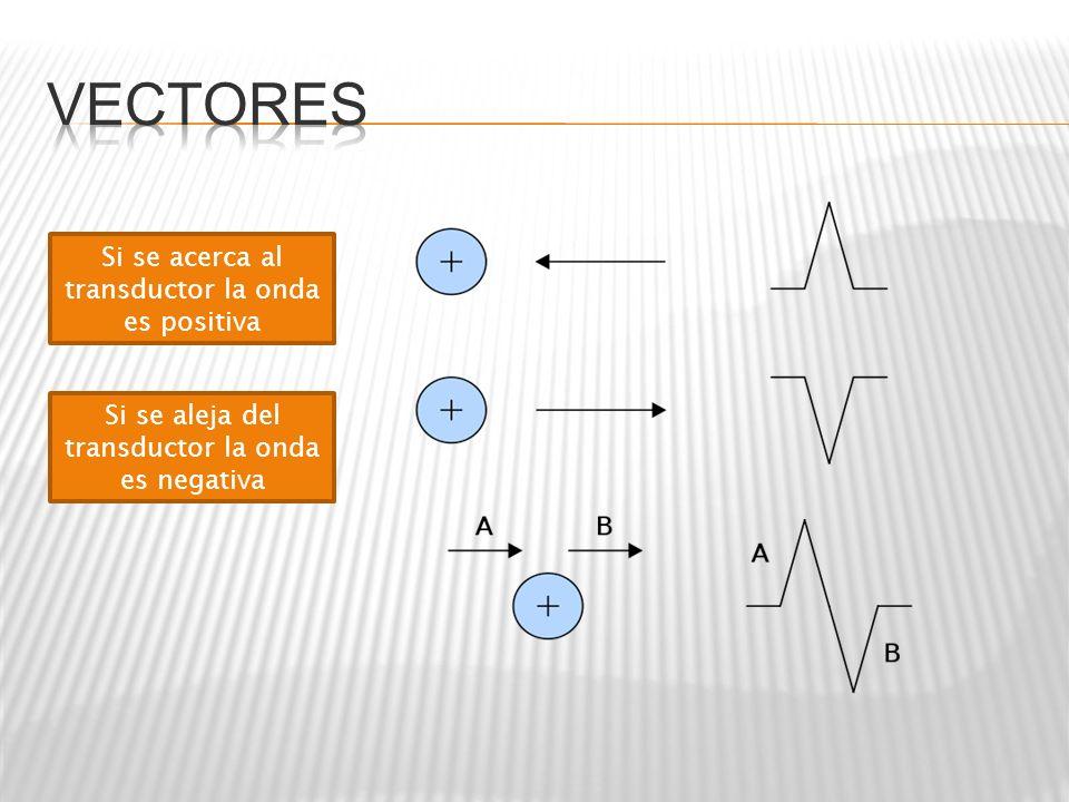 Si se acerca al transductor la onda es positiva Si se aleja del transductor la onda es negativa