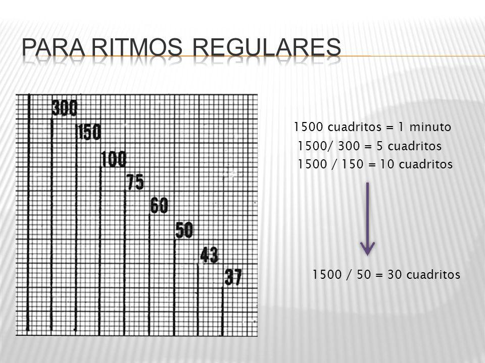 1500 cuadritos = 1 minuto 1500/ 300 = 5 cuadritos 1500 / 150 = 10 cuadritos 1500 / 50 = 30 cuadritos