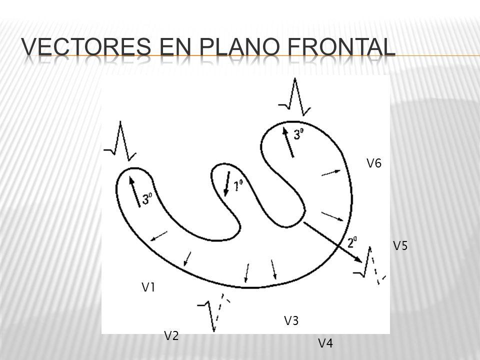 DI y AVF Positivos SI: Eje 0° y 90° NO: DI Negativo: AVF Negativo: Eje Cuadrantes Cuadrantes superiores Derechos Desviación derecha Desviación a la izquierda
