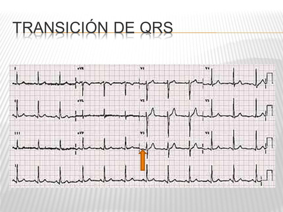 Desde el inicio del QRS al final de la onda T en el plano frontal