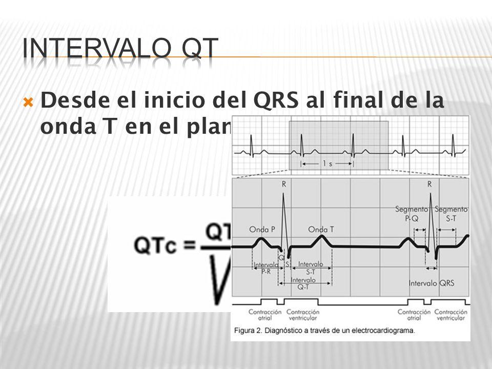 QT Medido= 14 cuadritos= 14 x 0.04= 56 miliseg QTc= QT med/ Raíz cuadr RR QTc= 0.56/ Raíz 1.04= 0.56/ 1.01= 0.55 segundos QT Medido= 14 cuadritos= 14 x 0.04= 56 miliseg QTc= QT med/ Raíz cuadr RR QTc= 0.56/ Raíz 1.04= 0.56/ 1.01= 0.55 segundos