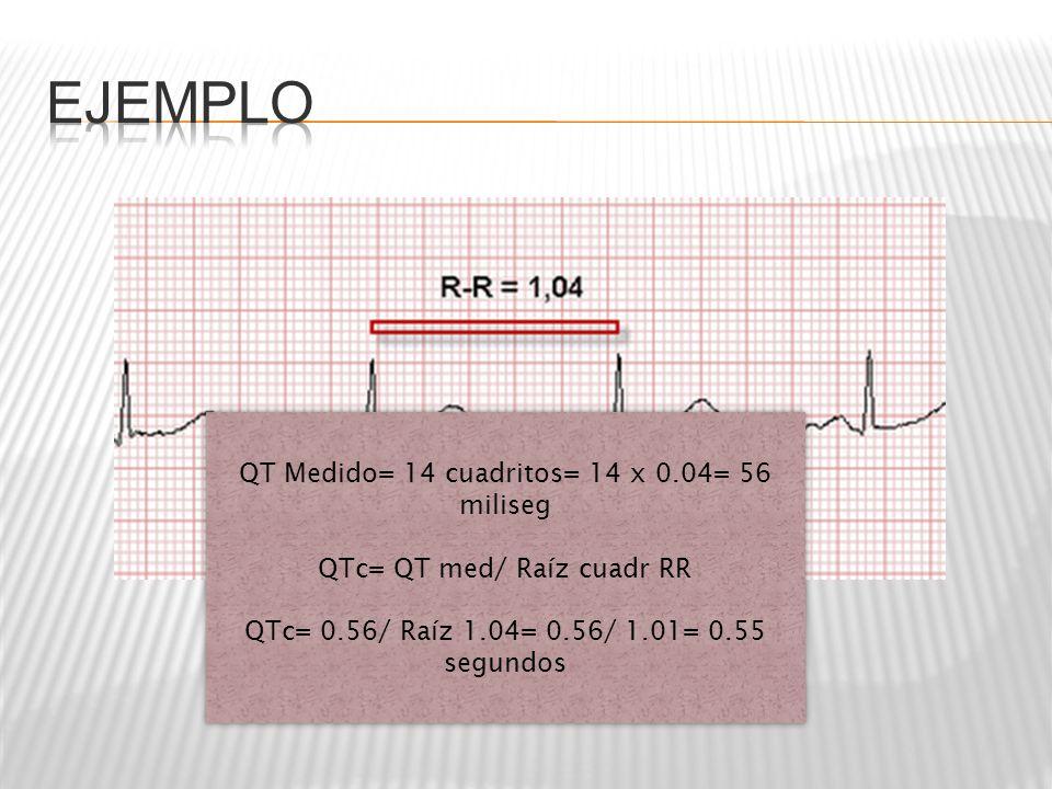 QT Medido= 14 cuadritos= 14 x 0.04= 56 miliseg QTc= QT med/ Raíz cuadr RR QTc= 0.56/ Raíz 1.04= 0.56/ 1.01= 0.55 segundos QT Medido= 14 cuadritos= 14