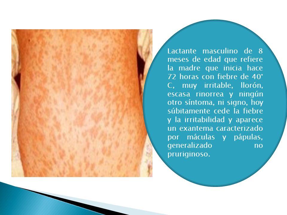 Virus Herpes Humano 6 y 7 Exantema súbito Rash Maculopapular Fiebre súbita que cede