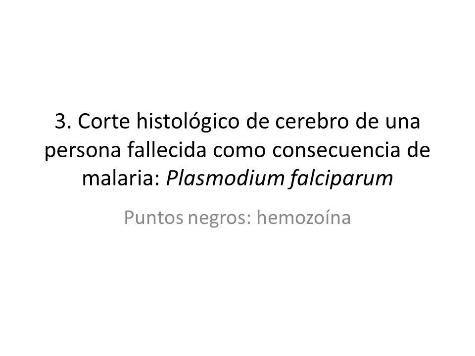 3. Corte histológico de cerebro de una persona fallecida como consecuencia de malaria: Plasmodium falciparum Puntos negros: hemozoína