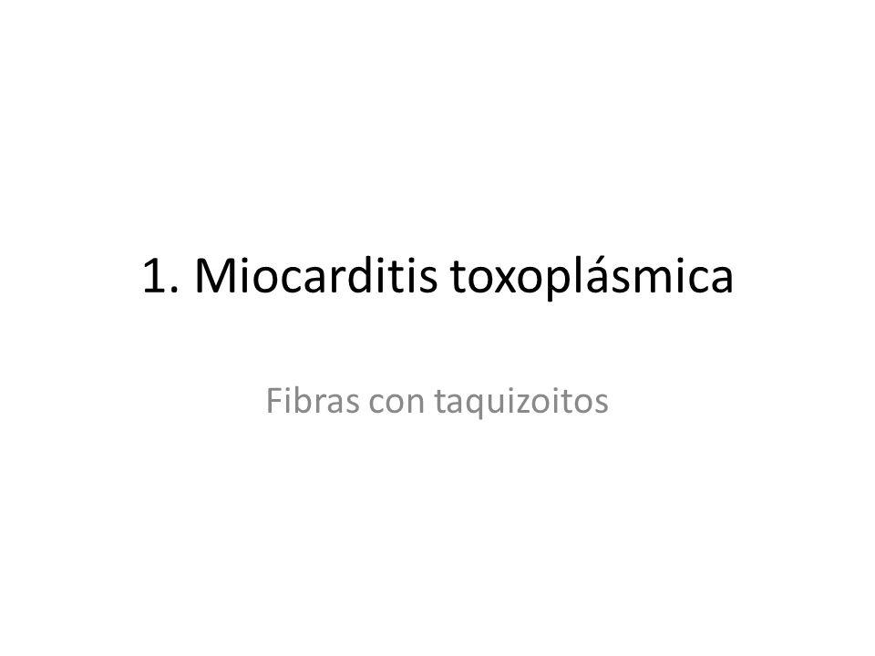 1. Miocarditis toxoplásmica Fibras con taquizoitos