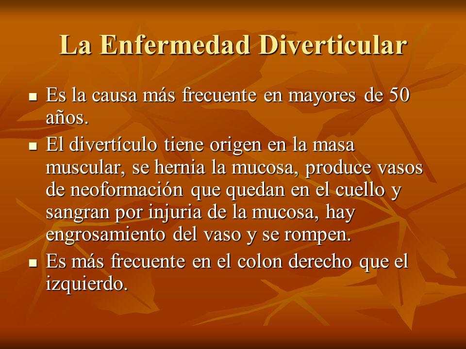 La Enfermedad Diverticular Es la causa más frecuente en mayores de 50 años. Es la causa más frecuente en mayores de 50 años. El divertículo tiene orig
