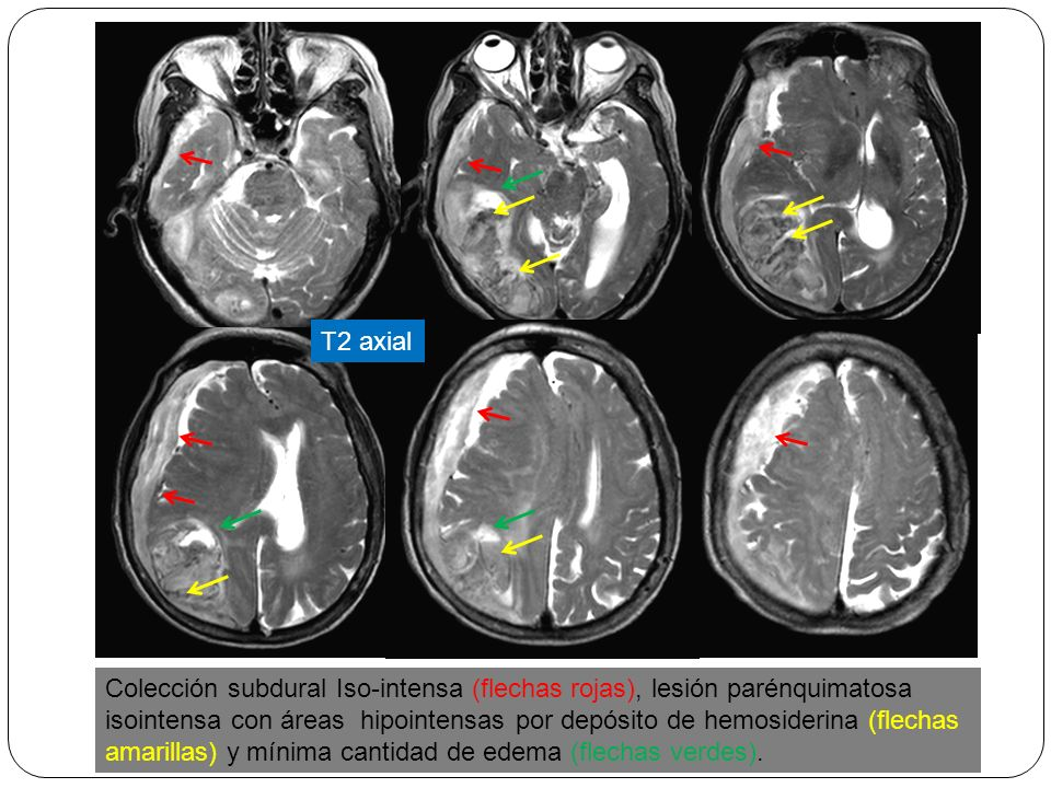 T2 axial Colección subdural Iso-intensa (flechas rojas), lesión parénquimatosa isointensa con áreas hipointensas por depósito de hemosiderina (flechas amarillas) y mínima cantidad de edema (flechas verdes).