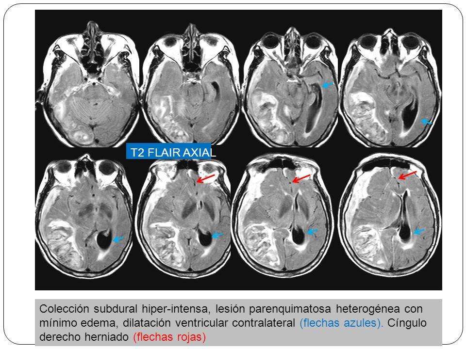 T2 FLAIR AXIAL Colección subdural hiper-intensa, lesión parenquimatosa heterogénea con mínimo edema, dilatación ventricular contralateral (flechas azules).