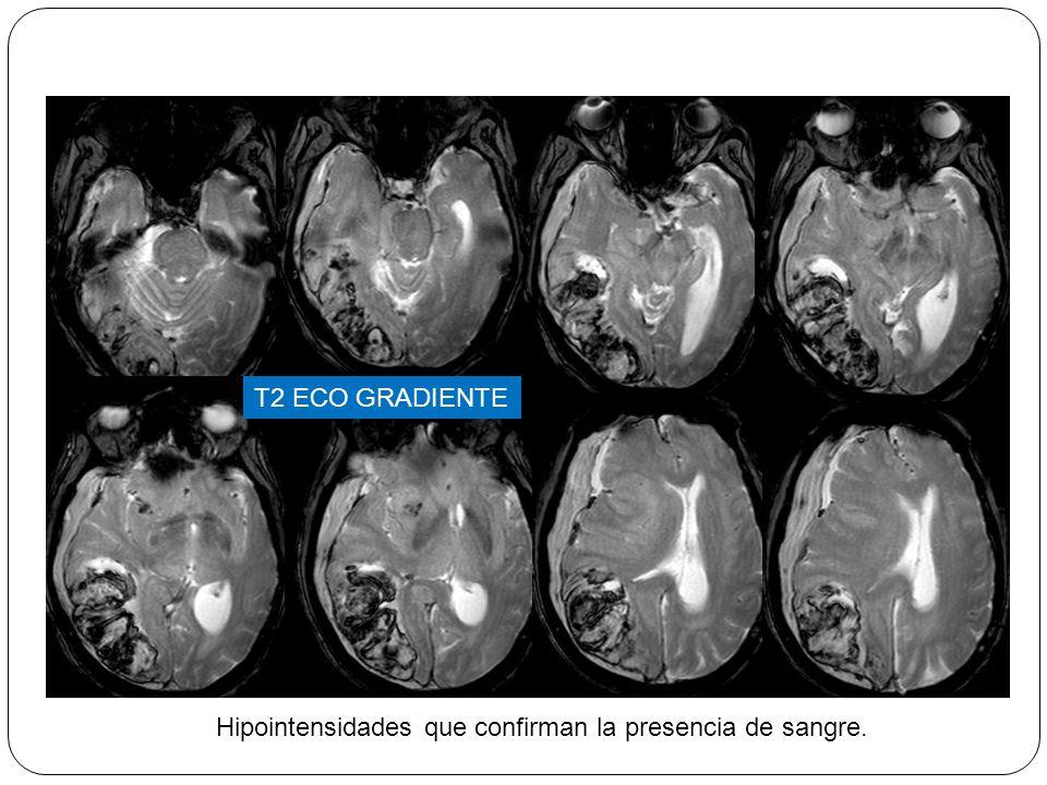 T2 ECO GRADIENTE Hipointensidades que confirman la presencia de sangre.