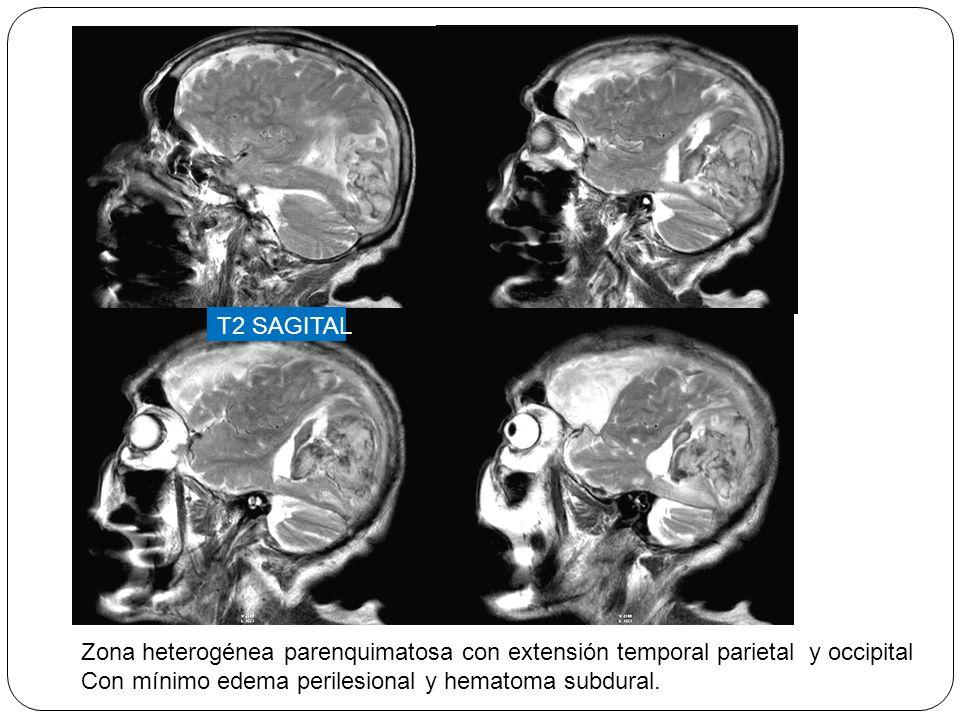 T2 SAGITAL Zona heterogénea parenquimatosa con extensión temporal parietal y occipital Con mínimo edema perilesional y hematoma subdural.