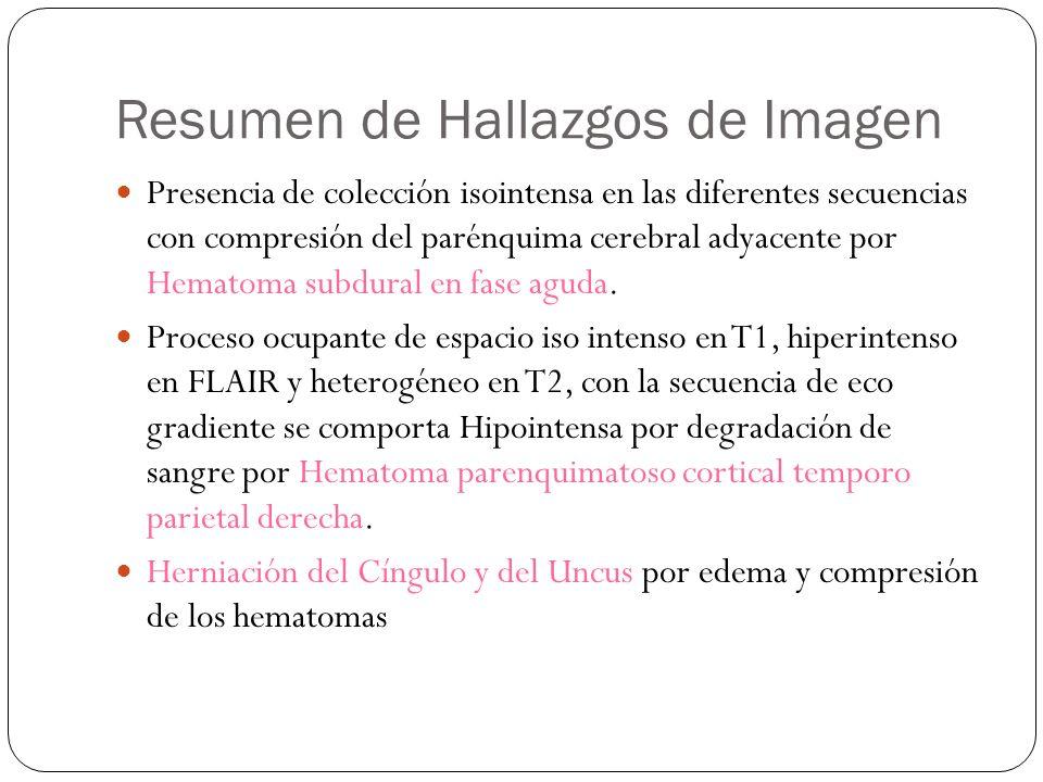 Resumen de Hallazgos de Imagen Presencia de colección isointensa en las diferentes secuencias con compresión del parénquima cerebral adyacente por Hematoma subdural en fase aguda.
