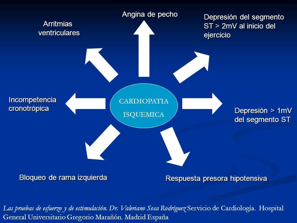 CARDIOPATIA ISQUEMICA Angina de pecho Depresión del segmento ST > 2mV al inicio del ejercicio Depresión > 1mV del segmento ST Respuesta presora hipote