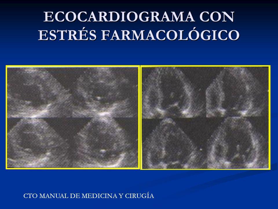 ECOCARDIOGRAMA CON ESTRÉS FARMACOLÓGICO CTO MANUAL DE MEDICINA Y CIRUGÍA