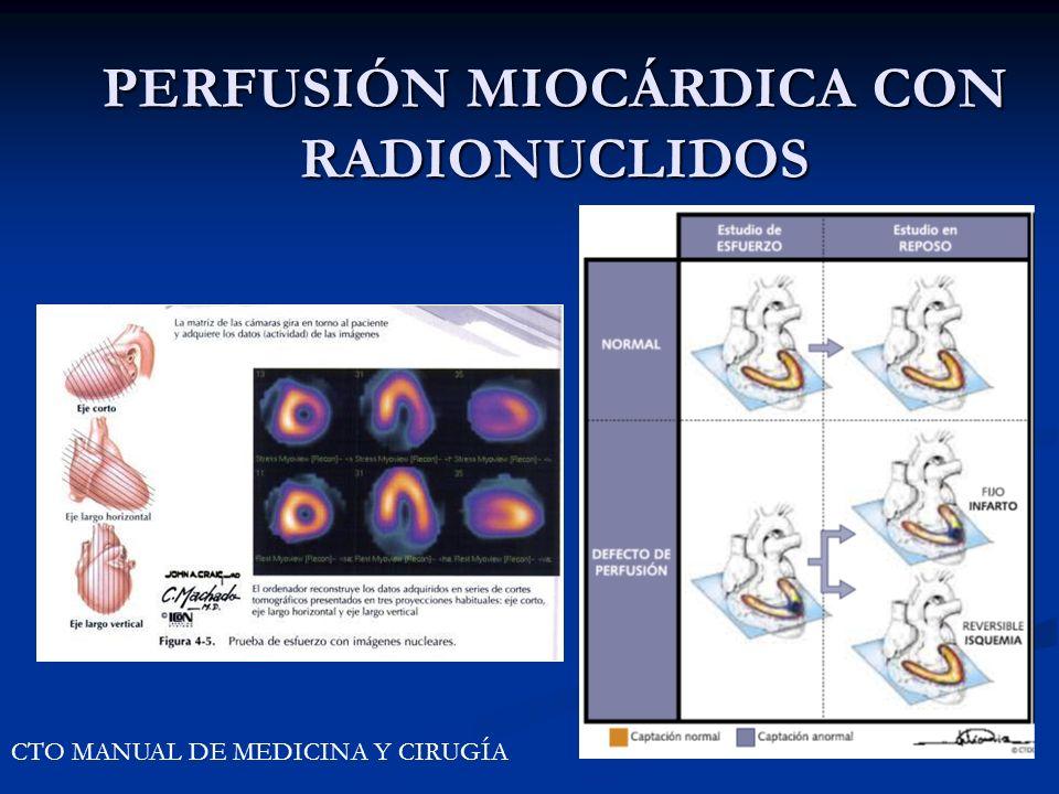 PERFUSIÓN MIOCÁRDICA CON RADIONUCLIDOS CTO MANUAL DE MEDICINA Y CIRUGÍA