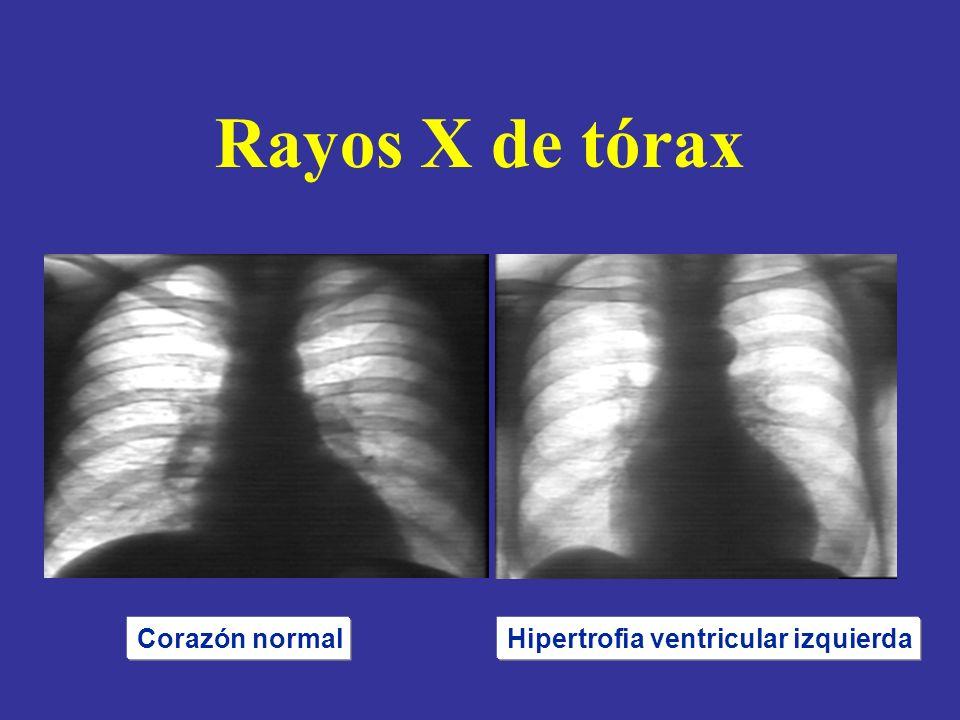 Rayos X de tórax Corazón normalHipertrofia ventricular izquierda