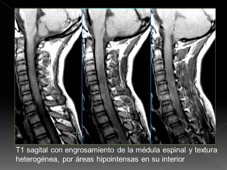 T2 Sagital en la región dorsal con engrosamiento de la médula espinal y textura heterogénea en su interior por imagen hiperintensas