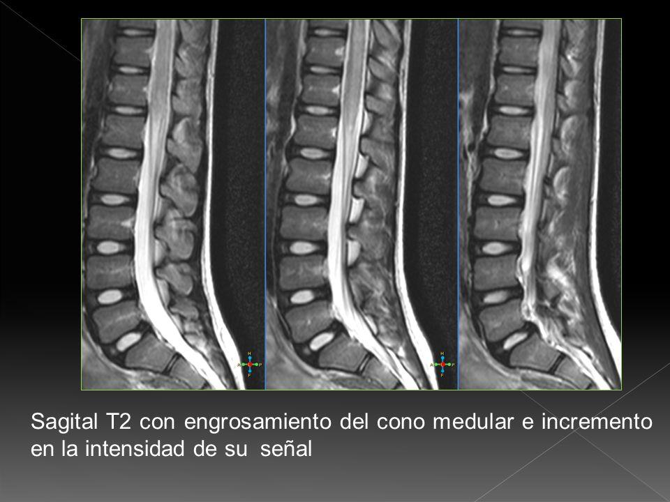T2 axial se corrobora el incremento en la intensidad de la señal