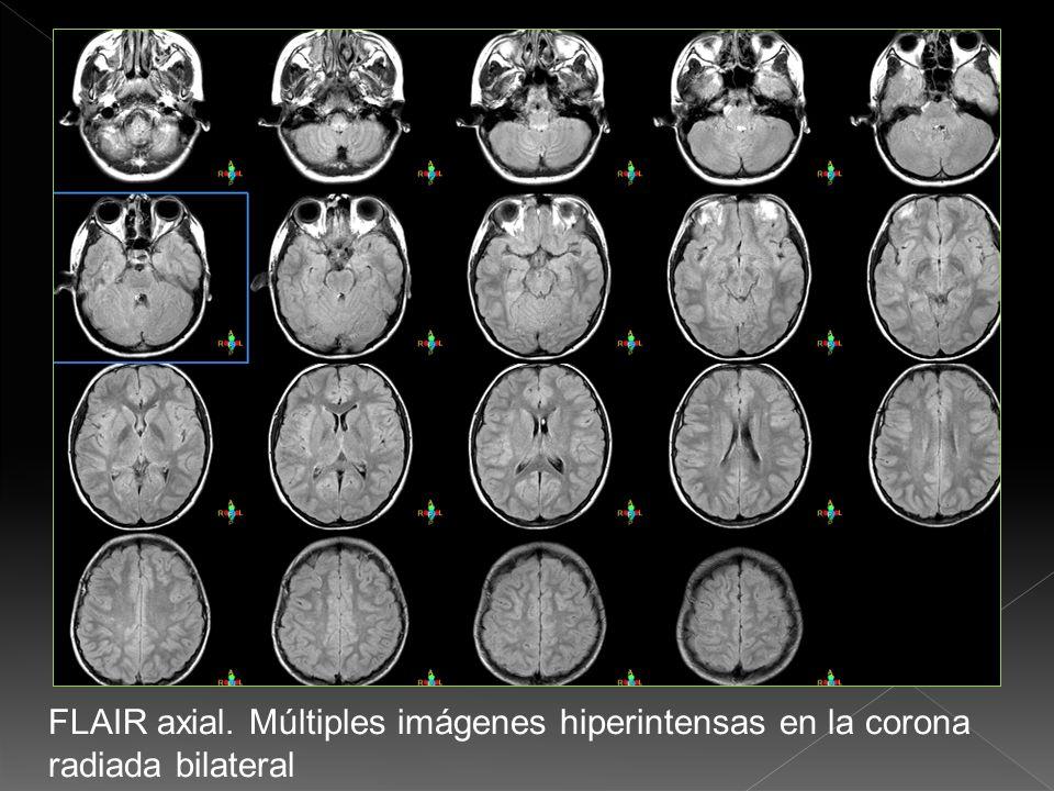 T2 axial cerebral con imágenes hiperintensas en corona radiada.