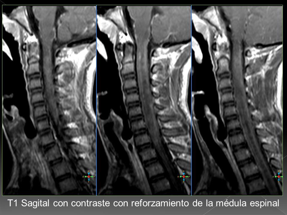 T1 Sagital con contraste con discreto reforzamiento de la médula espinal