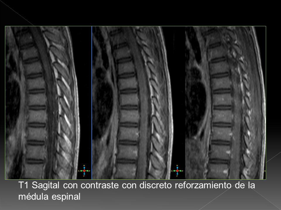 T1 Sagital con contraste con reforzamiento del cono médular