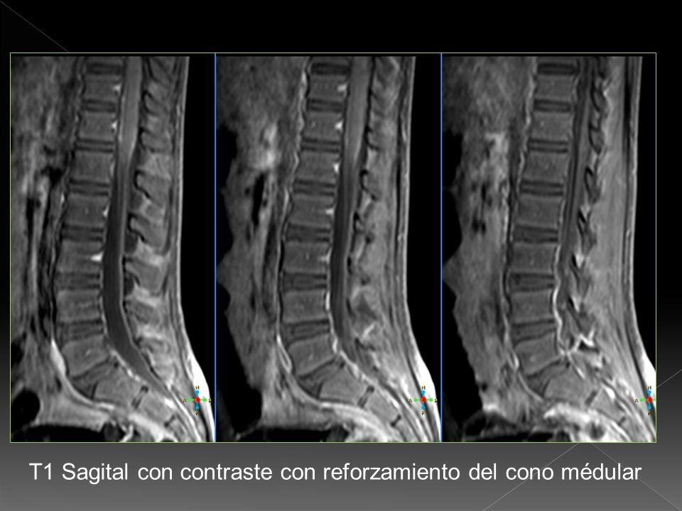 T1 coronal con contraste con reforzamiento de la médula espinal