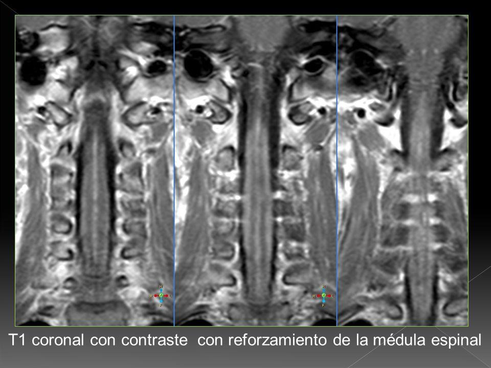 T1 coronal con contraste con reforzamiento del cono medular