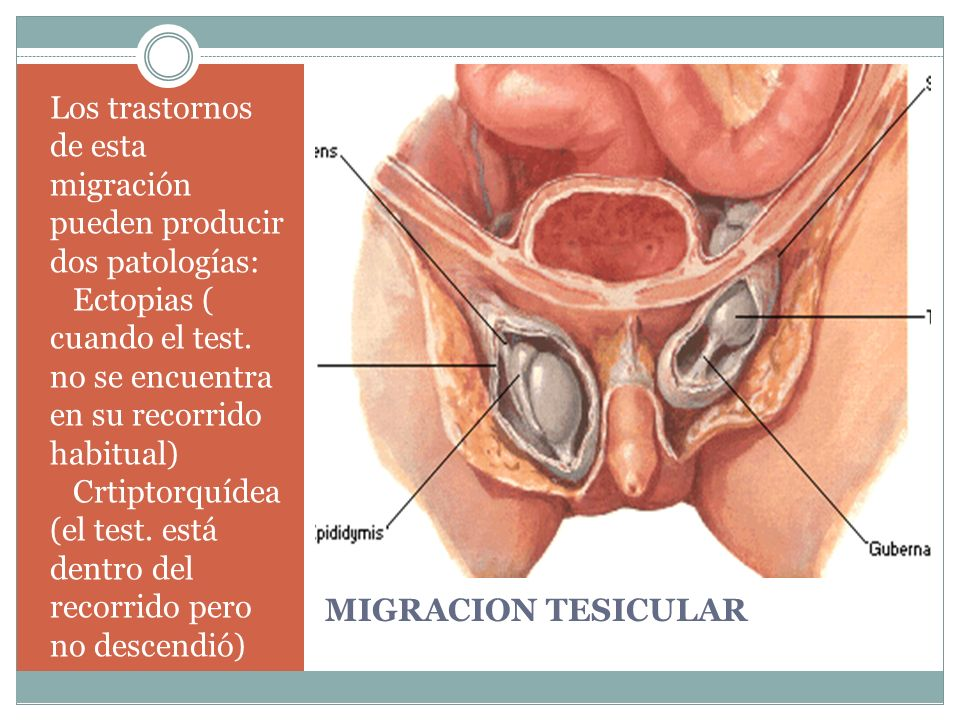 MIGRACION TESICULAR Los trastornos de esta migración pueden producir dos patologías: Ectopias ( cuando el test. no se encuentra en su recorrido habitu
