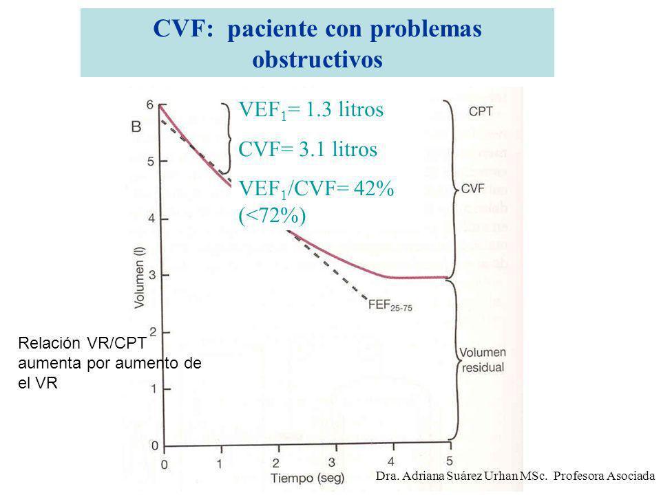 CVF: paciente con problemas obstructivos VEF 1 = 1.3 litros CVF= 3.1 litros VEF 1 /CVF= 42% (<72%) Relación VR/CPT aumenta por aumento de el VR Dra. A
