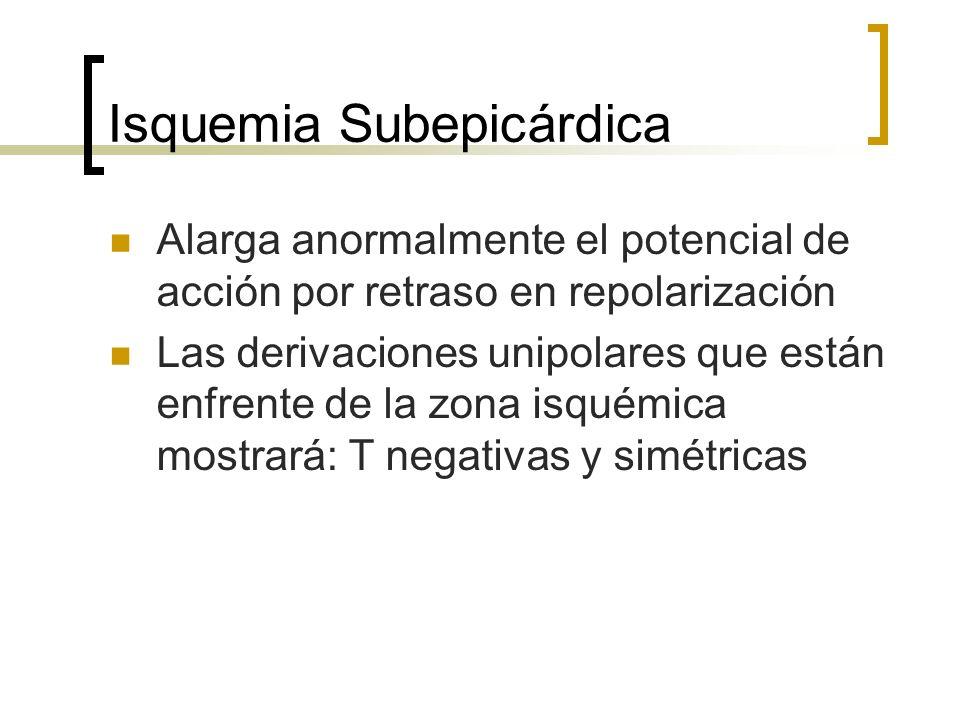 Isquemia Subepicárdica Alarga anormalmente el potencial de acción por retraso en repolarización Las derivaciones unipolares que están enfrente de la z