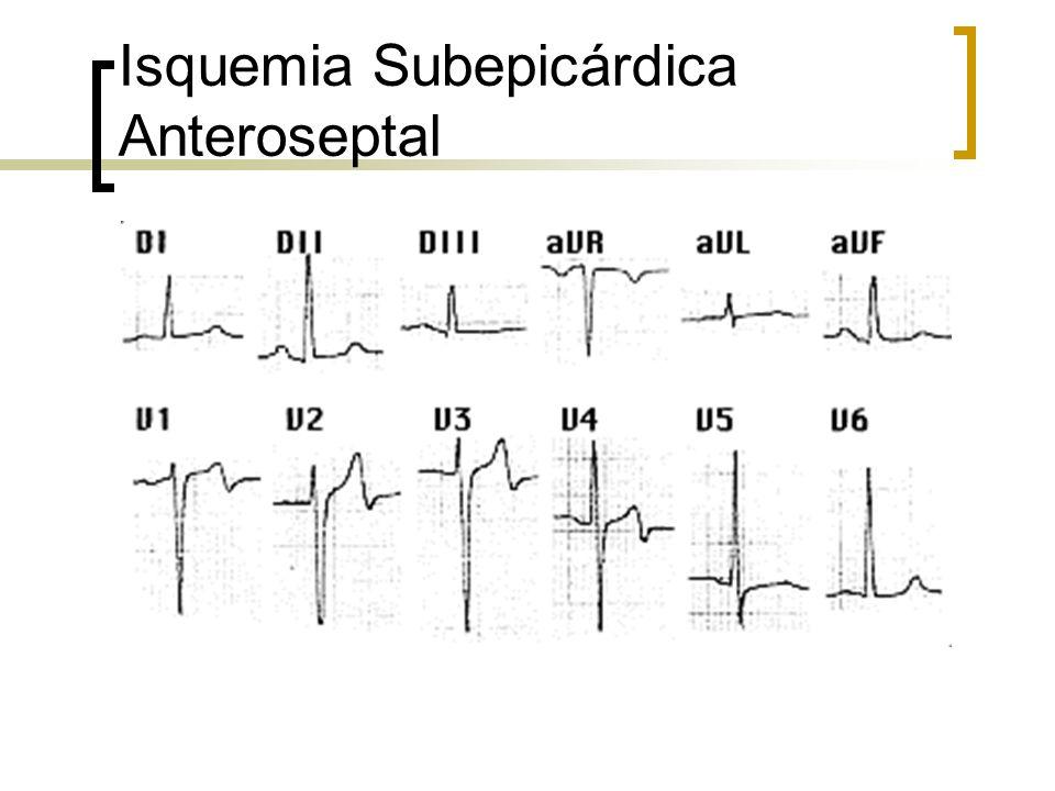 Isquemia Subepicárdica Anteroseptal
