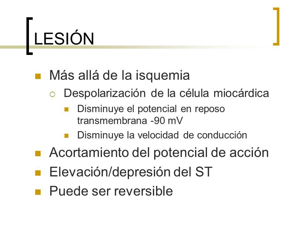 LESIÓN Más allá de la isquemia Despolarización de la célula miocárdica Disminuye el potencial en reposo transmembrana -90 mV Disminuye la velocidad de